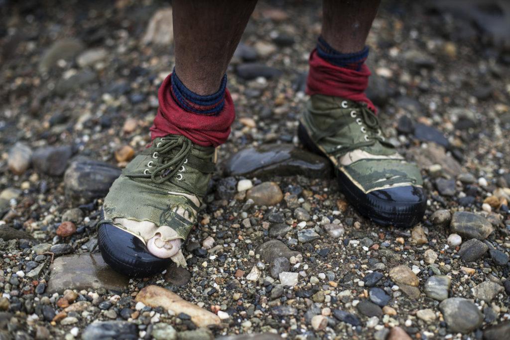 Miehen jalat, toisessa rikkinäinen kenkä